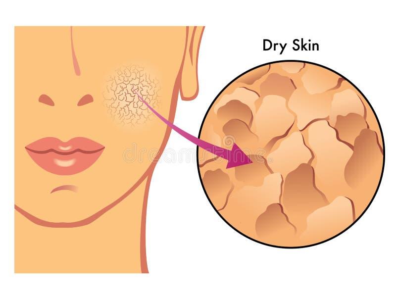 Pele seca ilustração stock