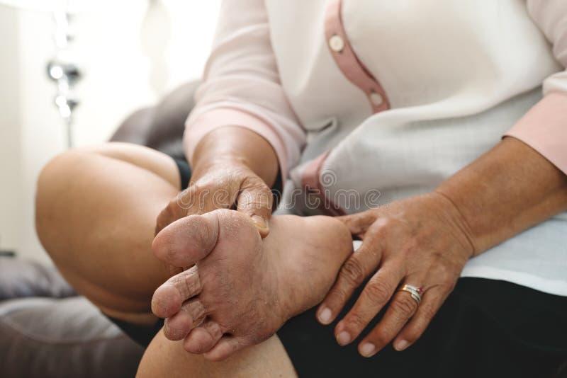 Pele seca e córnea no pé de mulher idosa fotos de stock