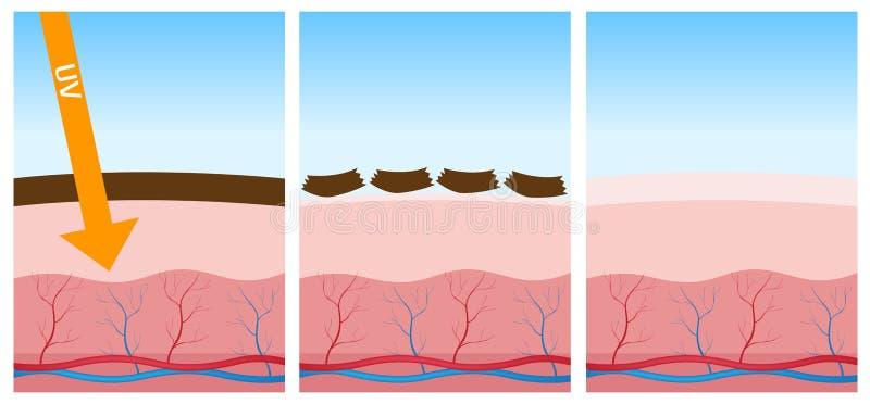 Pele uv e inoperante ilustração do vetor