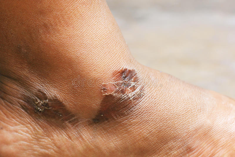 Pelle dell'ustione del piede fotografie stock