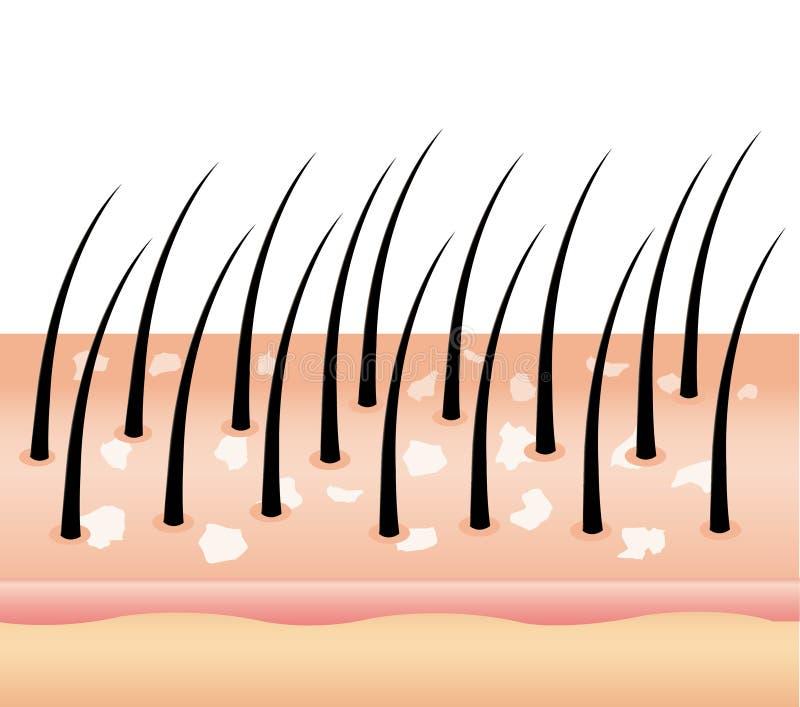 Pellicules sur des cheveux illustration libre de droits