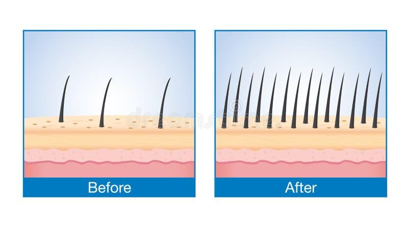 Pelo en el cuero cabelludo antes y después de la pérdida de pelo del tratamiento libre illustration