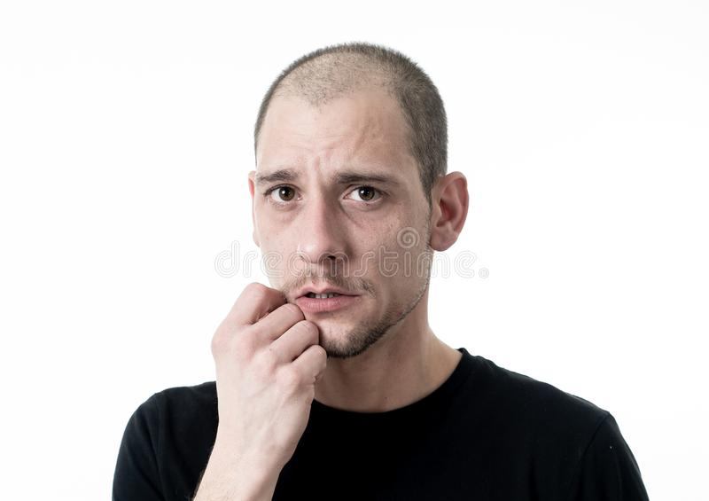 Close up portrait of sad young man face suffering from depression, stress and unhappiness stock image