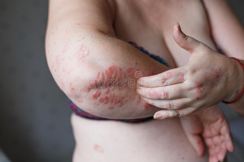 People scratch the itch with hand, Arm, itching, Concept with Healthcare And Medicine. Eczema or psoriasis on hand. People scratch the itch with hand, Arm stock image