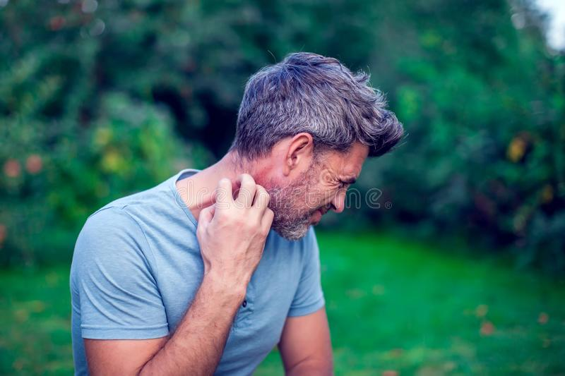 People scratch the itch with hand, Elbow, itching, Healthcare An. People scratch the itch with hand outdoor, Elbow, itching, Healthcare And Medicine, Men with stock image