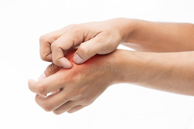 People scratch the itch with hand. Itching, Arm, Concept with Healthcare And Medicine stock photography