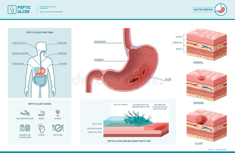 diagram of an ulcer peptic ulcer and helicobacter pylori infographic stock ... a labelled diagram of an anemometer