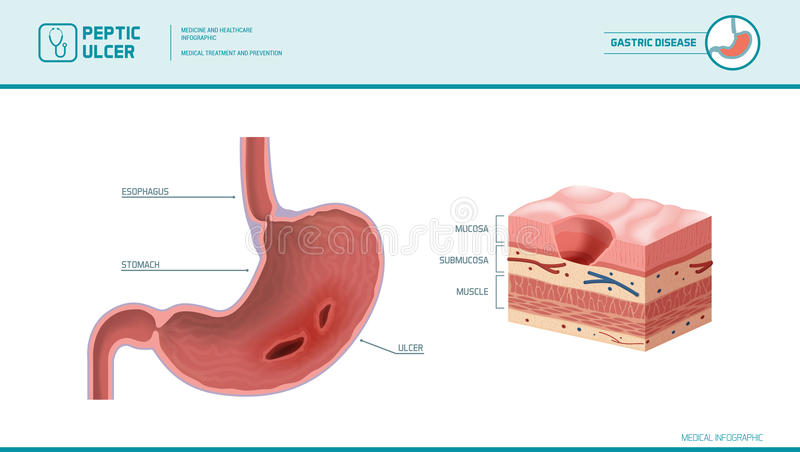peptic ulcer medical illustration stomach inflamed sore stomach mucosa stomach lining cross section diagram 91015527 peptic ulcer medical illustration stock vector illustration
