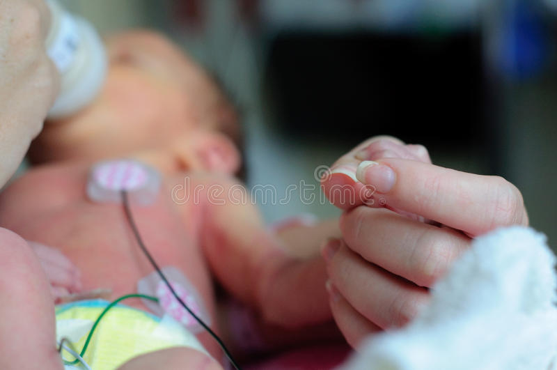 Pequeño bebé prematuro en ICU imagenes de archivo