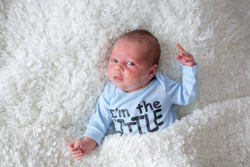 Pequeño bebé recién nacido que duerme, bebé con la erupción de piel foto de archivo