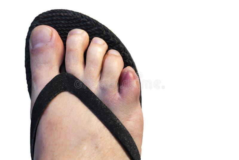 Pequeño dedo del pie contusionado de una mujer fotografía de archivo libre de regalías