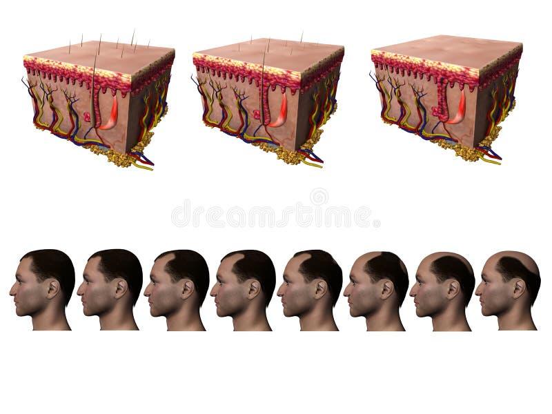 Perda de cabelo ilustração stock