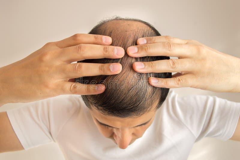 Perdita di capelli immagine stock