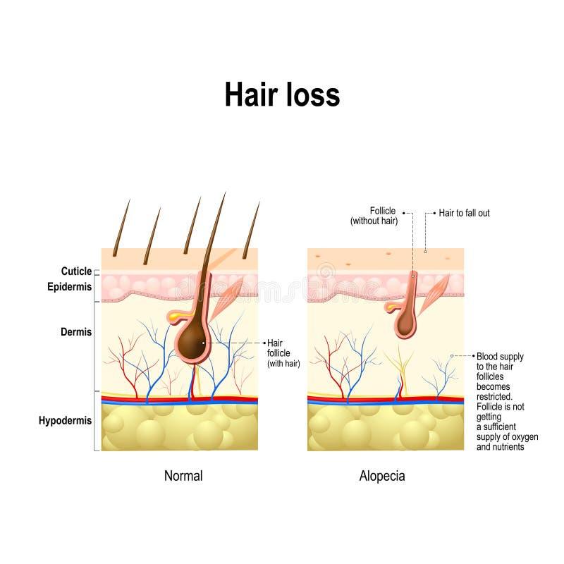 Perdita di capelli, alopecia, calvizile royalty illustrazione gratis