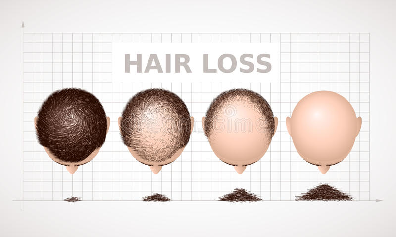 Perdita di capelli Un grafico di quattro fasi dell'alopecia illustrazione di stock