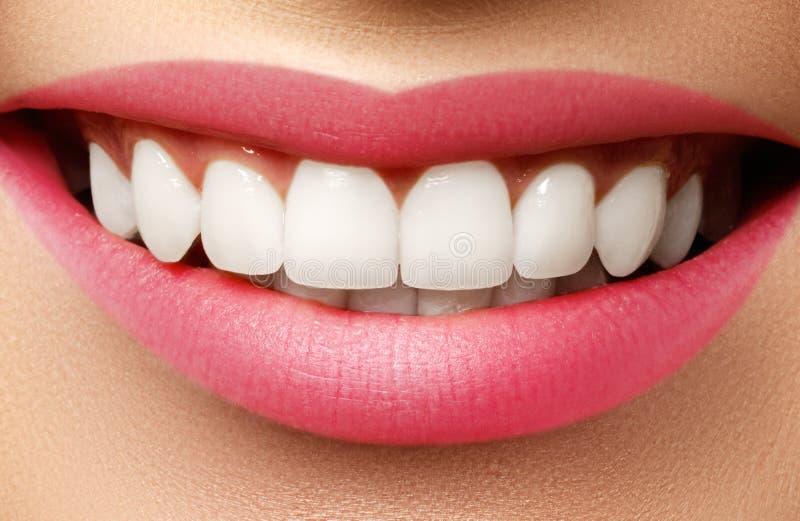 Perfecte glimlach na bleken Tandzorg en het witten van tanden royalty-vrije stock afbeeldingen