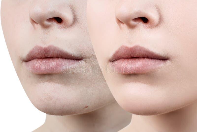 Perfecte natuurlijke lippen van jonge vrouw royalty-vrije stock foto