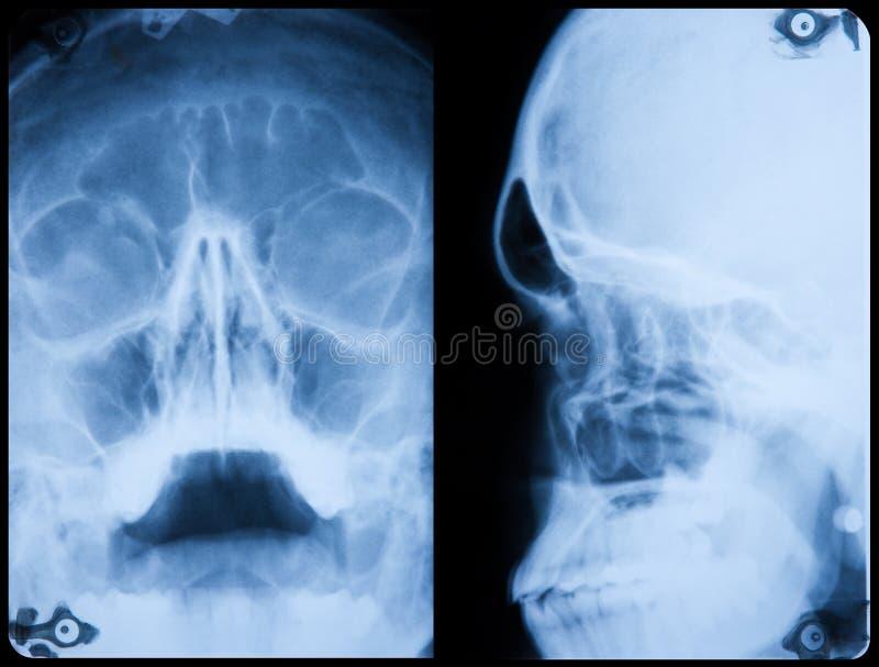 Perfil delantero y lateral del cráneo de la radiografía foto de archivo libre de regalías