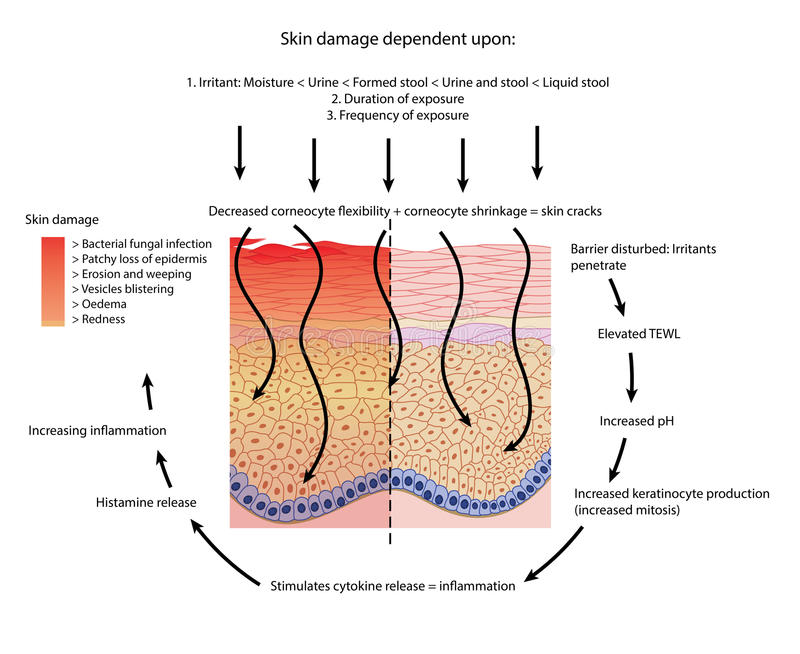 Perineal skin damage. Factors involved in damage to and inflammation of perineal skin stock illustration