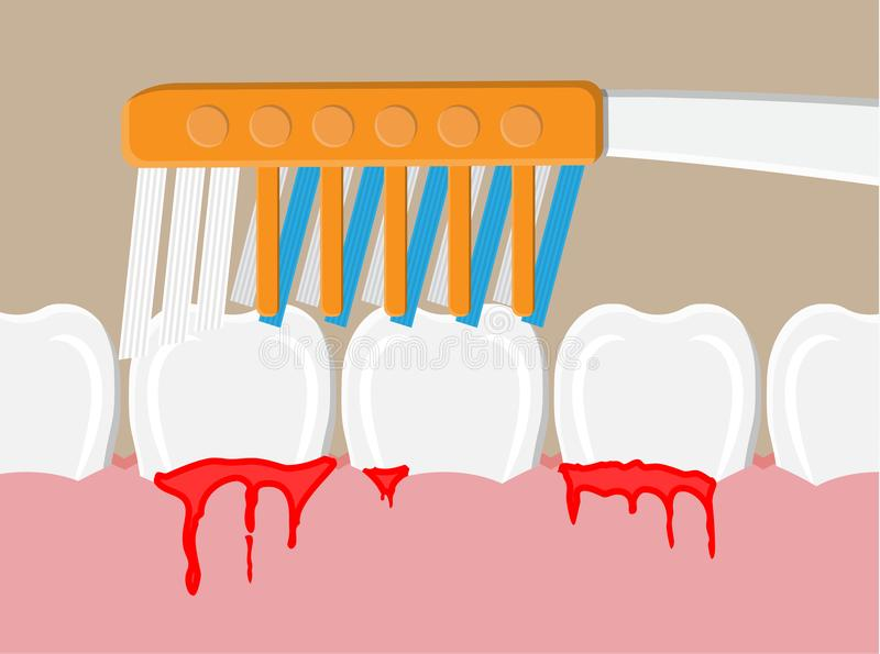 Periodontal disease, bleeding gums vector illustration