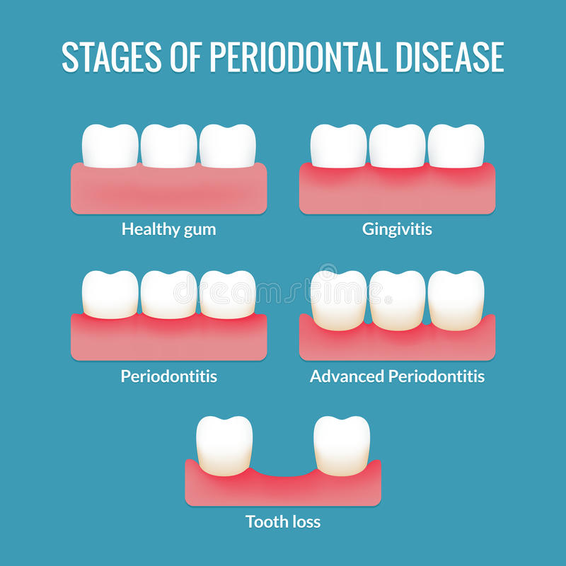 Periodontal Disease Chart vector illustration