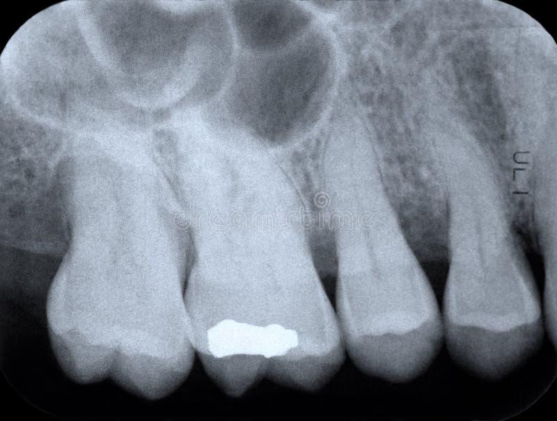Periodontaler Röntgenstrahl stockfoto