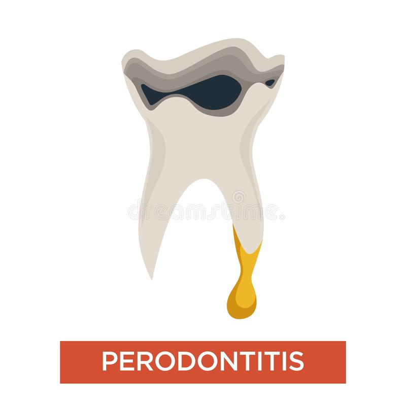 Periodontitis不适的牙牙科口腔疾病 库存例证
