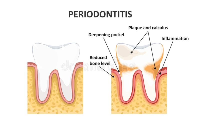 Periodontitis,牙齿疾病 库存例证