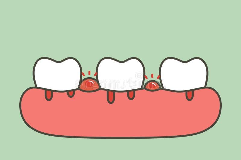 Periodontitis или заболевание камеди с кровотечением - стилем вектора шаржа зубов плоским иллюстрация вектора