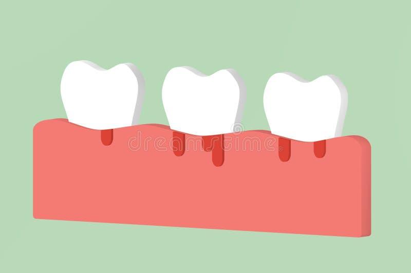 Periodontitis или периодонтальное заболевание с кровотечением, воспалением ткани камеди вокруг зубов иллюстрация вектора