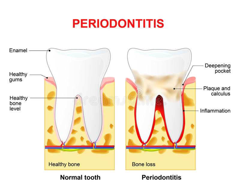 Periodontitis или pyorrhea иллюстрация вектора