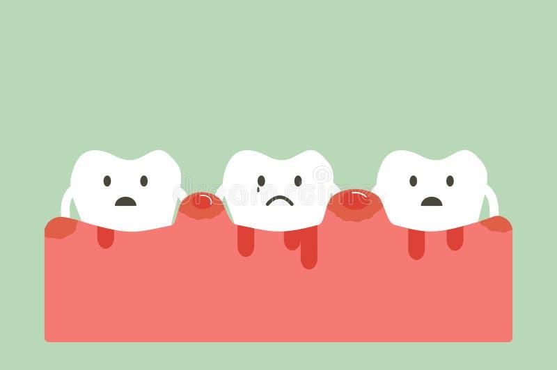 Periodontitis и кровотечение бесплатная иллюстрация