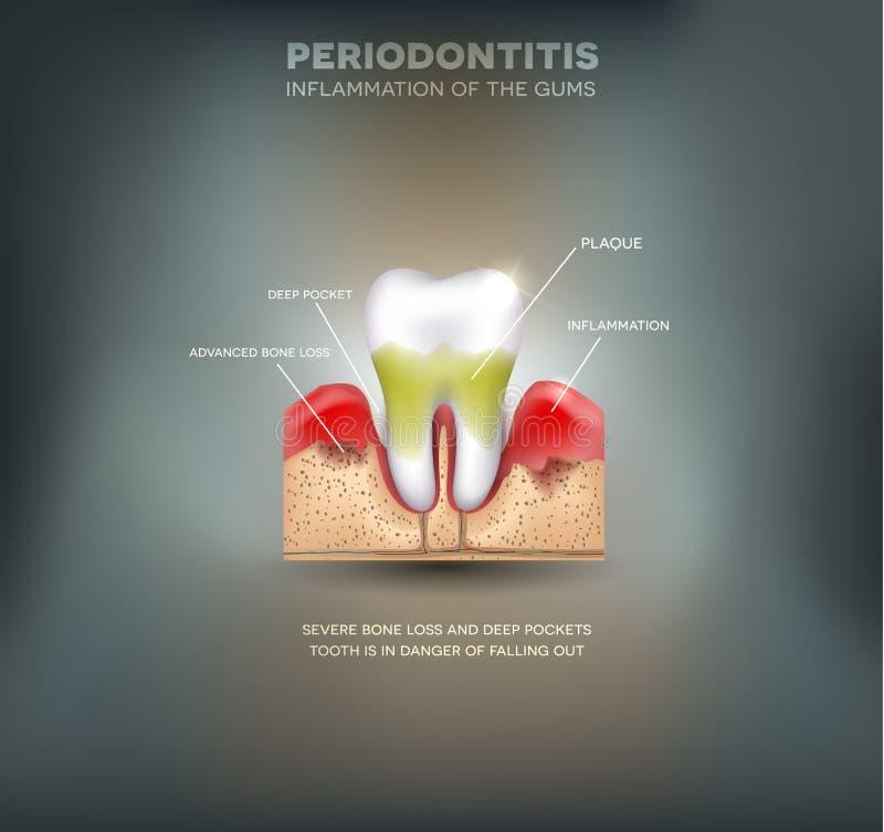 Periodontitis 库存例证