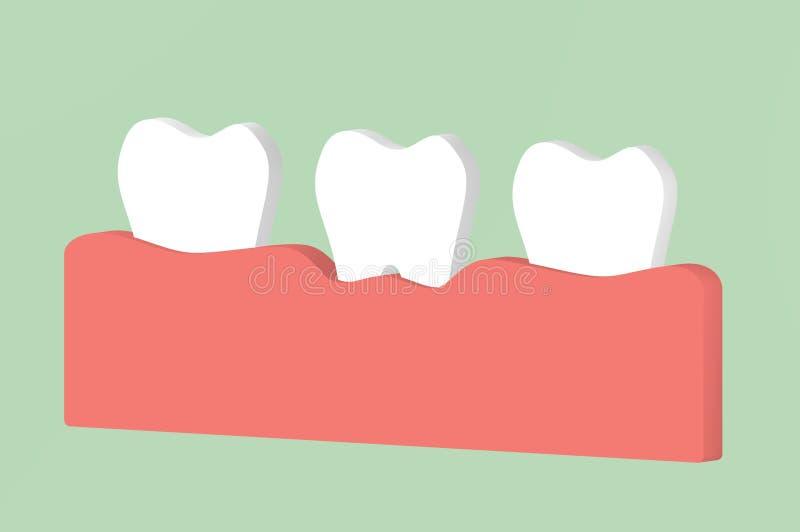 Periodontitis del dente o gengivite, malattia di gomma - il fumetto dentario 3d rende il carattere sveglio per progettazione illustrazione vettoriale