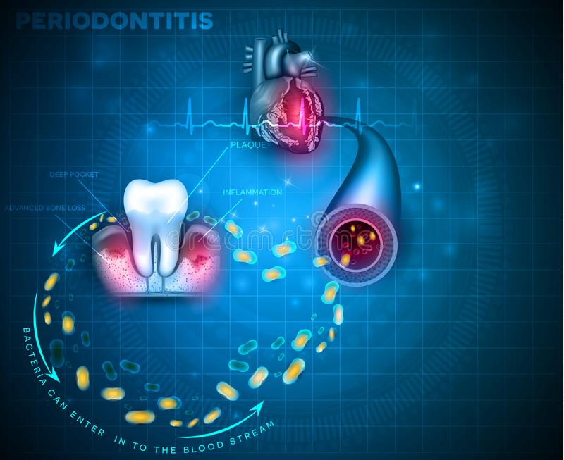 Periodontitis and heart problems royalty free illustration