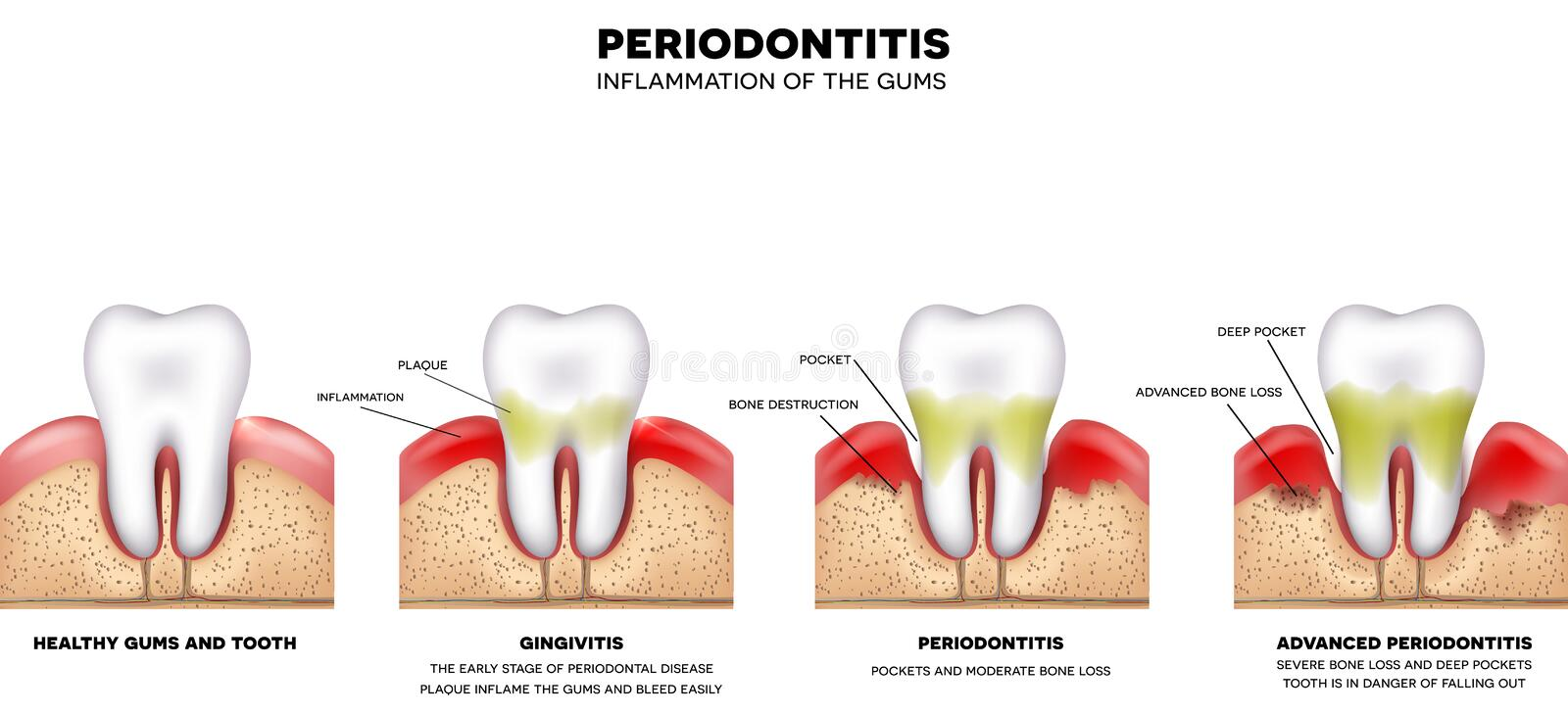 Periodontitis. Inflammation of the gums, detailed illustration stock illustration