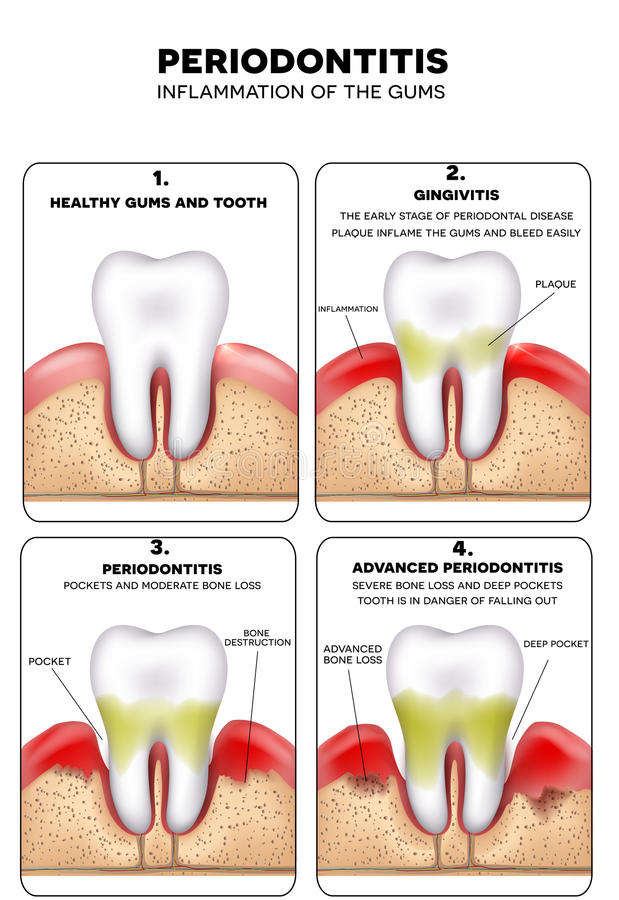 Periodontitis. Inflammation of the gums, detailed illustration. Healthy tooth, Gingivitis and at the end advanced vector illustration