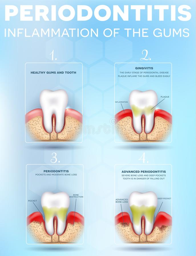 Periodontitis dental poster. Periodontitis, inflammation of the gums stages, detailed illustration. Healthy tooth, Gingivitis and at the end advanced vector illustration