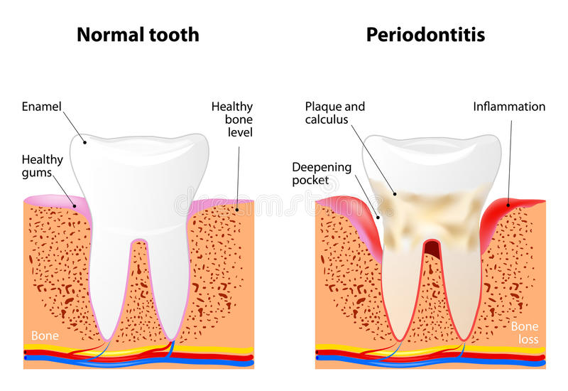 Periodontitis. Is a inflammatory diseases affecting the periodontium, the tissues that surround and support the teeth royalty free illustration