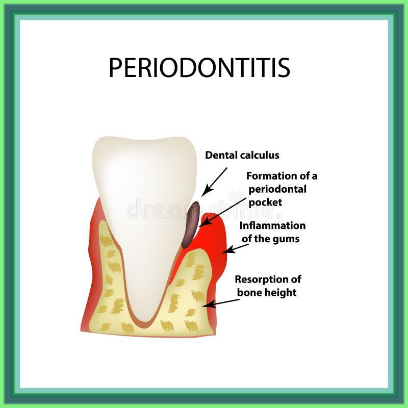 Periodontitis La maladie dentaire Inflammation des gommes et illustration libre de droits