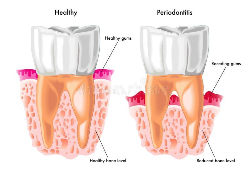 Periodontitis vector illustration