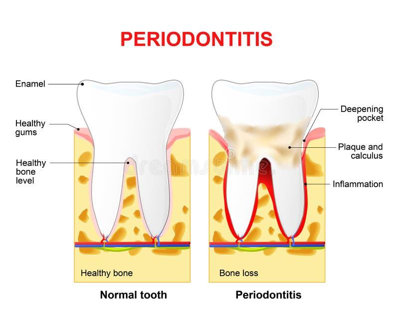 Periodontitis o piorrea illustrazione vettoriale