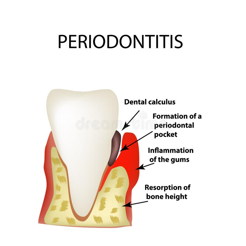 Periodontitis Stomatologiczna choroba Rozognienie dziąsła i ilustracji