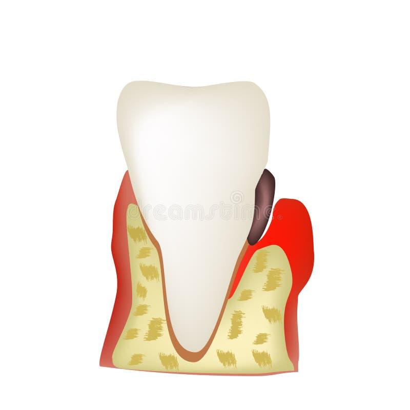 Periodontitis Tandziekte Ontsteking van de gommen en vector illustratie