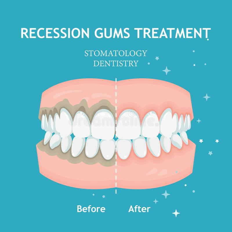 Periodontitis vector banner. Recession gums treatment. Stomatology dentistry concept royalty free illustration