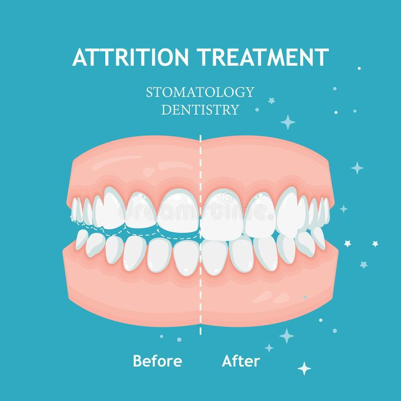 Periodontitis vector banner. Recession gums treatment. Stomatology dentistry conceptAttrition treatment vector. Stomatology dentis vector illustration