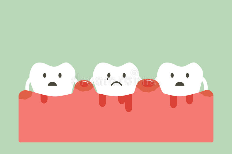 Periodontitis y sangría libre illustration
