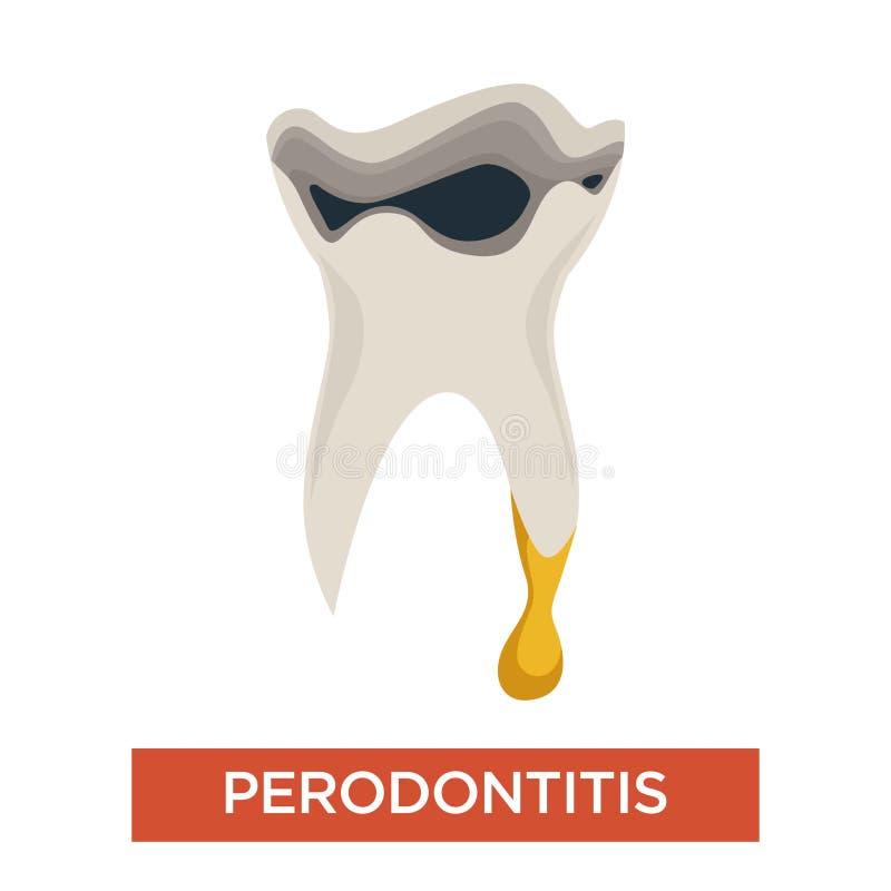 Periodontitis zębu dentystyki usta zagłębienia chora choroba ilustracji