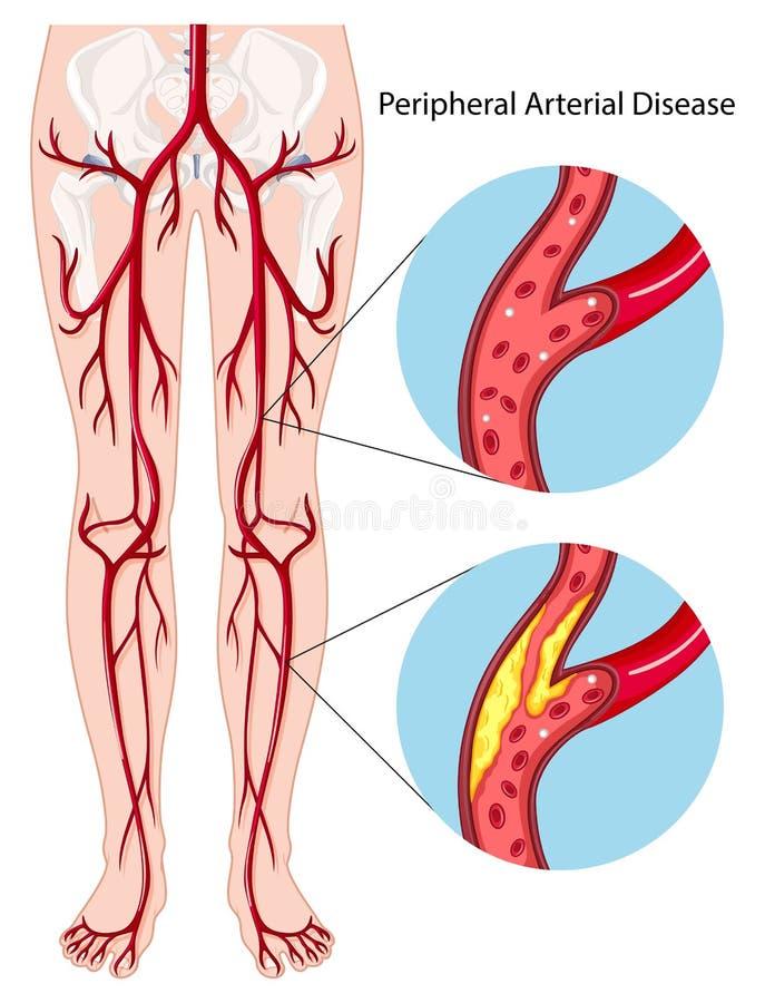 Peripheral arterial disease diagram. Illustration vector illustration