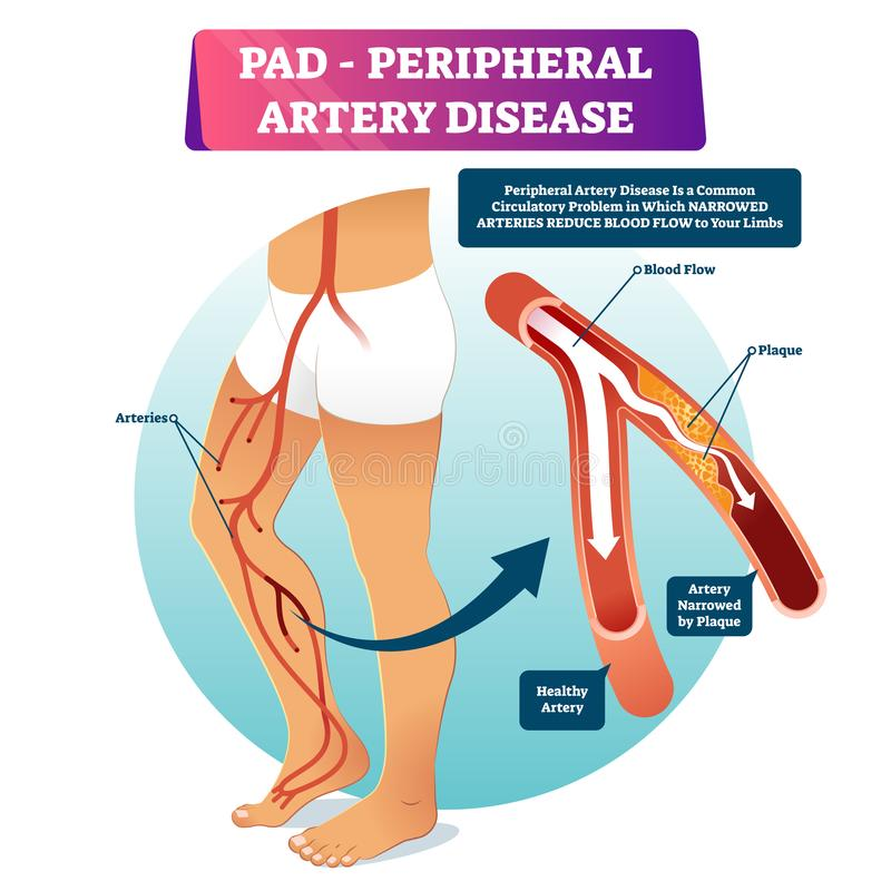 Free Peripheral Artery Disease PAD Vector Illustration. Labeled Medical Scheme. Stock Photography - 155103282